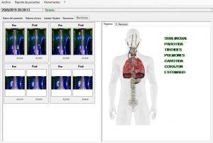 Visualización de órganos toráxicos y columna vertebral