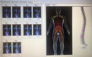 Visualización sistema nervioso y columna vertebral